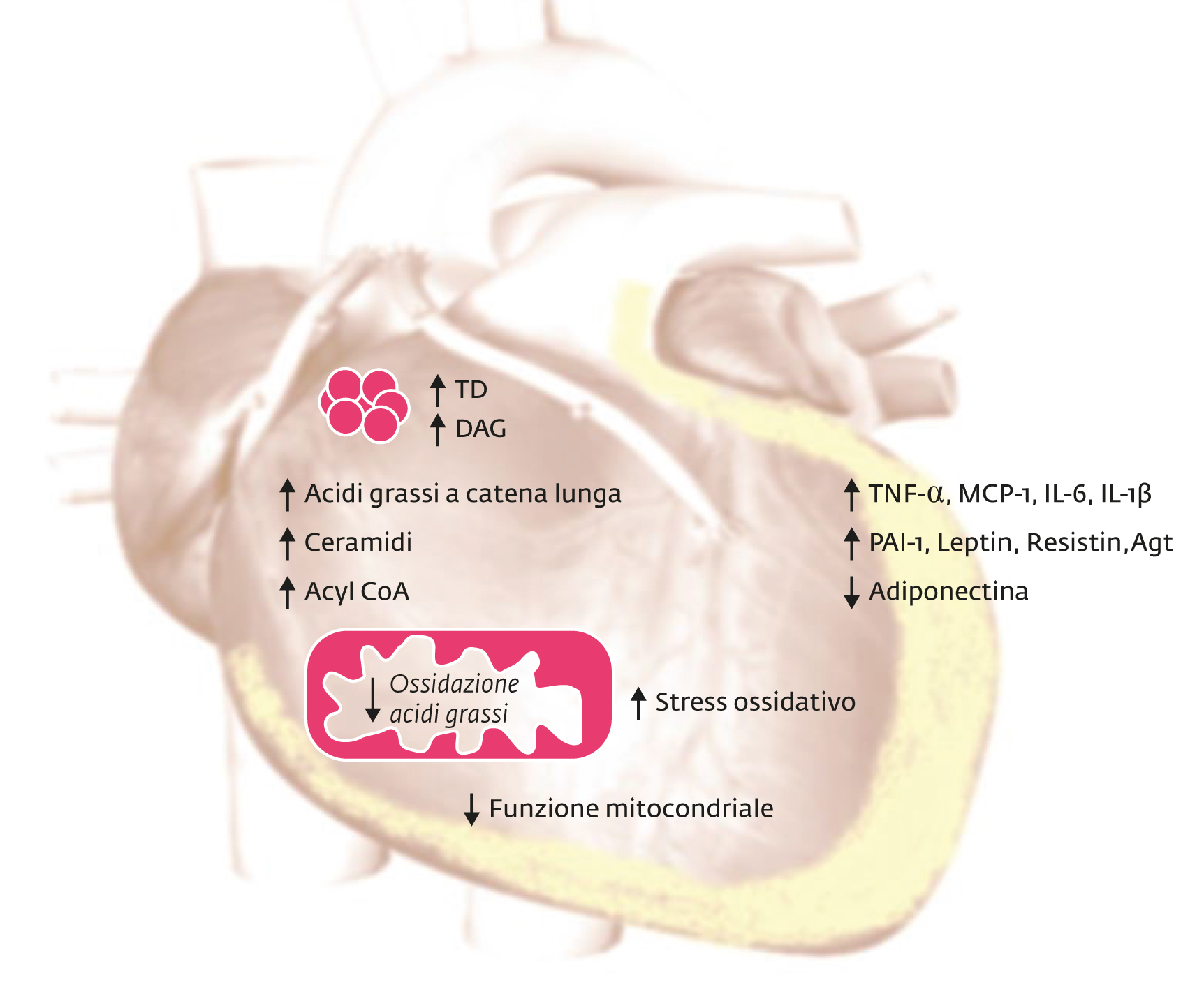 La cardiomiopatia diabetica