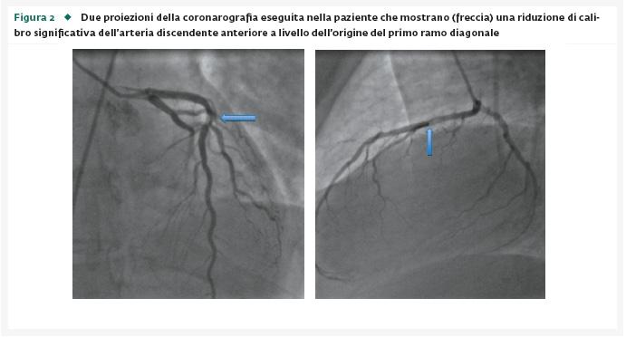 Dissezione coronarica complicata da infarto miocardico acuto (NSTEMI) e da grave chetoacidosi diabetica in giovane affetta da diabete mellito tipo 1